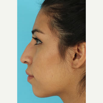 25-34 year old woman treated with Rhinoplasty before 3691045