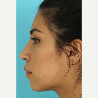 25-34 year old woman treated with Rhinoplasty after 3691045