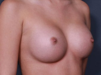Nipple Surgery after 672615