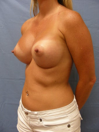 41 year old with slight breast sag and samll breasts after 1016094