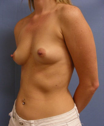 41 year old with slight breast sag and samll breasts before 1016094