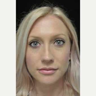 Scarless Closed Rhinoplasty after 3123826