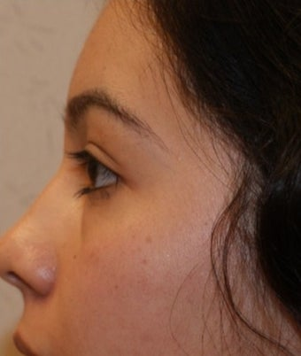 18-24 year old woman treated for Eyelid Surgery 1535236