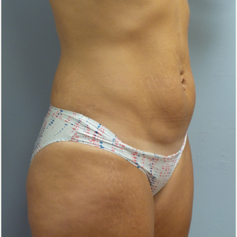25-34 year old woman treated with Tummy Tuck before 3482332