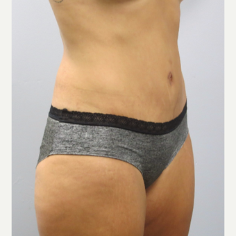 25-34 year old woman treated with Tummy Tuck after 3482332