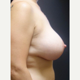 35-44 year old woman treated with Breast Lift with Implants after 3014361