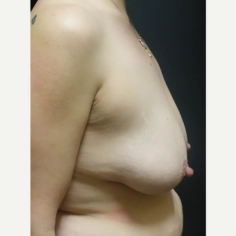 35-44 year old woman treated with Breast Lift with Implants before 3014361