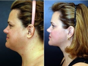 40 year old female following neck lift including lipocontouring and suspension before 1436606