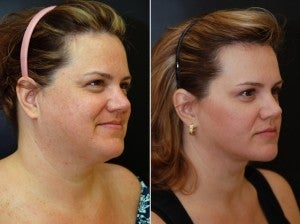 40 year old female following neck lift including lipocontouring and suspension after 1436606
