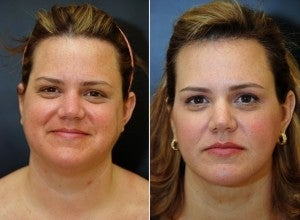 40 year old female following neck lift including lipocontouring and suspension 1436606