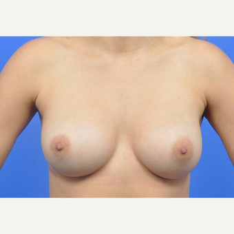 25-34 year old woman treated with Breast Augmentation after 3137543
