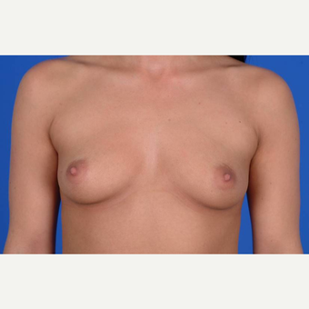 25-34 year old woman treated with Breast Augmentation before 3137543