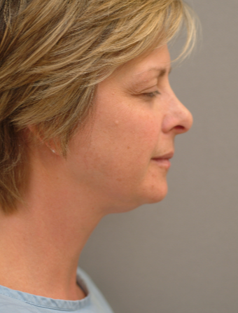 51 year old woman treated with Neck Lift