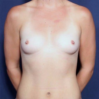 18-24 year old woman treated with Breast Augmentation before 2652419