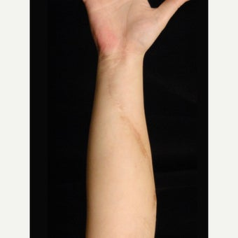 Arm Scar Revision after 1698002