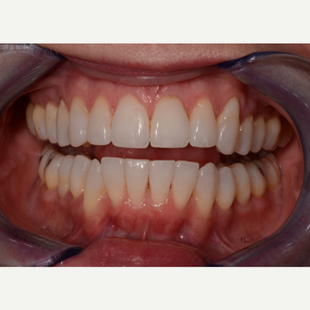 35-44 year old woman treated with Invisalign after 3735977