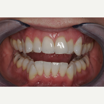 35-44 year old woman treated with Invisalign before 3735977