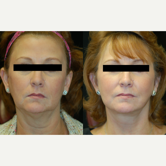 55-64 year old woman treated with Facelift before 2994261