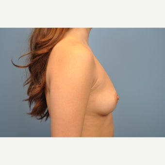 18-24 year old woman treated with Breast Augmentation 1576094
