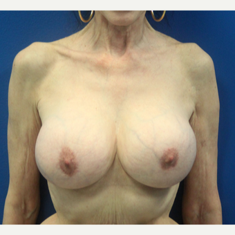 65-74 year old woman treated with Breast Implant Revision after 3366537