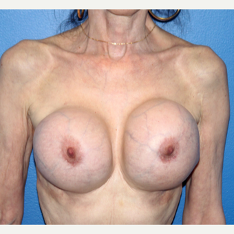 65-74 year old woman treated with Breast Implant Revision before 3366537