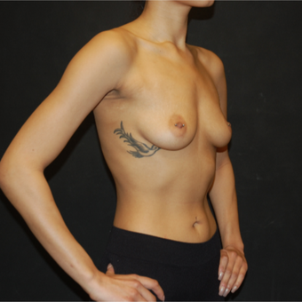 18-24 year old woman treated with Breast Augmentation before 2993532
