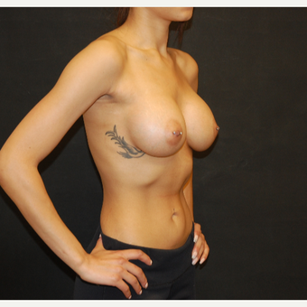 18-24 year old woman treated with Breast Augmentation after 2993532