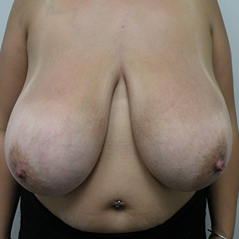 25-34 year old woman treated with Breast Reduction before 3814522