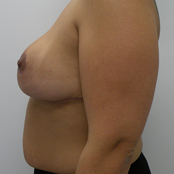 25-34 year old woman treated with Breast Reduction 3814522