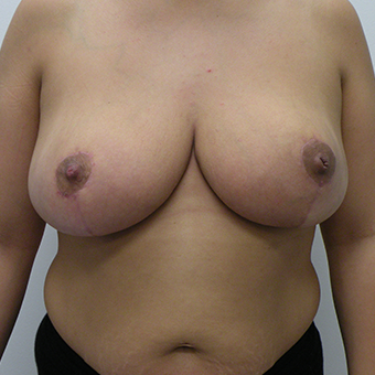 25-34 year old woman treated with Breast Reduction after 3814522