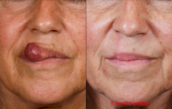 65-year-old woman with large lip lesion treated by surgical excision and repair before 663969