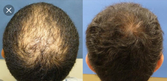 35-44 year old man treated with FUE Hair Transplant before 3745481