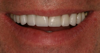 55 Year Old Male gets Smile Makeover after 859010