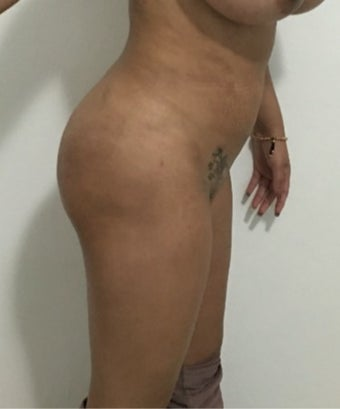 18-24 year old woman treated with Brazilian Butt Lift after 3604231