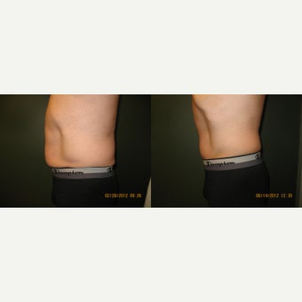 25-34 year old man treated with CoolSculpting before 1618631