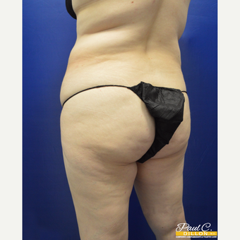 35-44 year old woman treated with Brazilian Butt Lift before 3603735