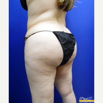 35-44 year old woman treated with Brazilian Butt Lift after 3603735