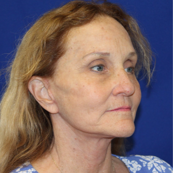 55-64 year old woman treated with Facelift after 3845553