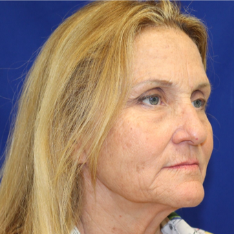 55-64 year old woman treated with Facelift before 3845553