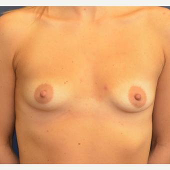 25-34 year old woman treated with Breast Augmentation before 3098190