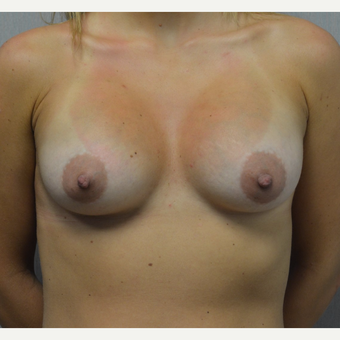 25-34 year old woman treated with Breast Augmentation after 3098190