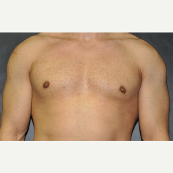 Bilateral Gynecomastia Correction after 2969852
