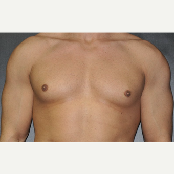 Bilateral Gynecomastia Correction before 2969852
