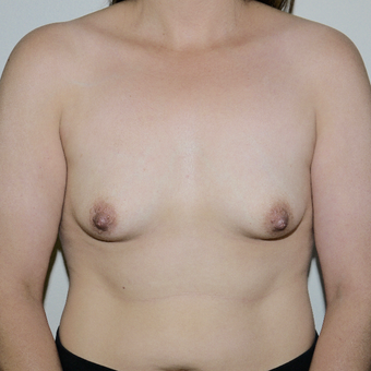 35-44 year old woman treated with Breast Lift with Implants before 3496084