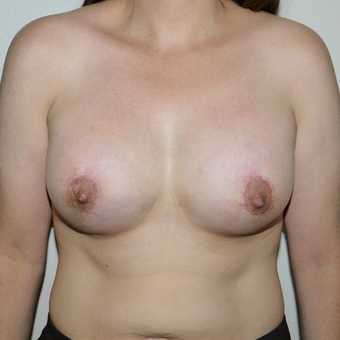 35-44 year old woman treated with Breast Lift with Implants after 3496084