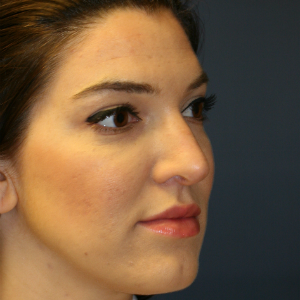 25-34 year old woman treated with Rhinoplasty before 3559822