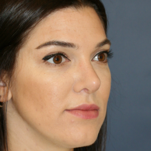 25-34 year old woman treated with Rhinoplasty after 3559822