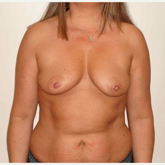 45-54 year old woman treated with Breast Augmentation before 3664802