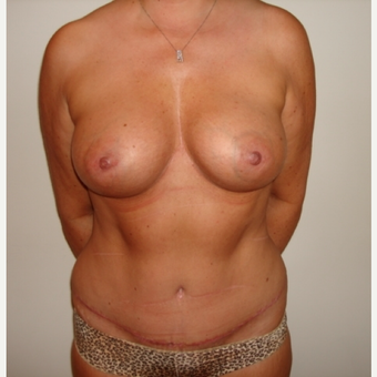 45-54 year old woman treated with Breast Augmentation after 3664802
