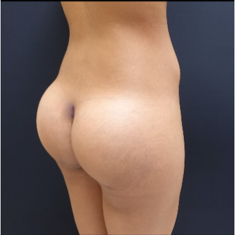25-34 year old woman treated with 548cc Round Silicone Butt Implants for her Augmentation after 3043077